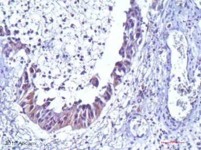 Immunohistochemistry (Formalin/PFA-fixed paraffin-embedded sections) - Anti-Hexokinase 1 antibody [4D7] (ab105213)