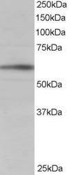 Western blot - BAIAP2 antibody (ab105221)