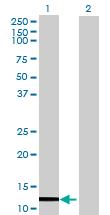 Western blot - GNLY antibody (ab105222)