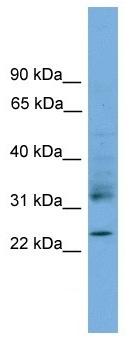 Western blot - RHOJ antibody (ab105311)