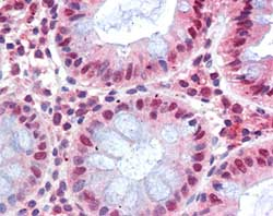 Immunohistochemistry (Formalin/PFA-fixed paraffin-embedded sections) - MBD2 antibody (ab105323)