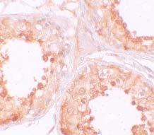 Immunocytochemistry - Anti-MSY2/YBOX2 antibody (ab105336)