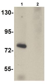 Western blot - Solo antibody (ab105345)