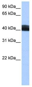 Western blot - LRRC17 antibody (ab105372)