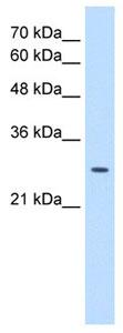 Western blot - emopamil binding protein antibody (ab105374)