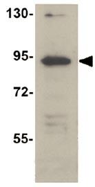 Western blot - TCTN2 antibody (ab105384)