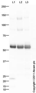 Western blot - Anti-CD276 antibody (ab105434)