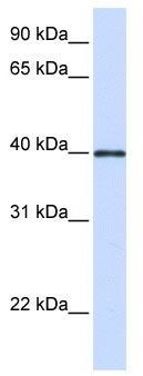 Western blot - Glycoprotein 2 (zymogen granule membrane) antibody (ab105503)
