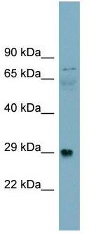 Western blot - DAG1  antibody (ab105504)