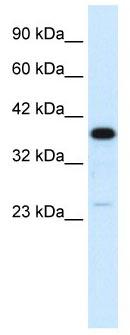 Western blot - C4 binding protein antibody (ab105507)