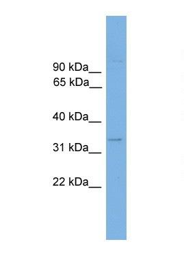 Western blot - ANKRD54 antibody (ab105508)