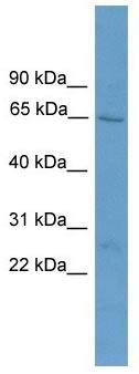 Western blot - ACOT11 antibody (ab105509)