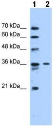 Western blot - SLC35A3 antibody (ab105517)