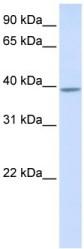 Western blot - KLHDC2 antibody (ab105518)