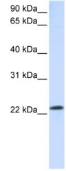 Western blot - RAB18 antibody (ab105519)