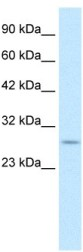 Western blot - RNF141 antibody (ab105520)