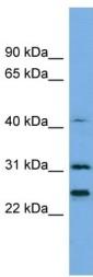 Western blot - Histone H1.4 antibody (ab105522)