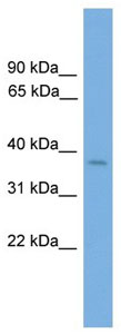 Western blot - Six3 antibody (ab105529)