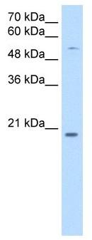 Western blot - CHIC2 antibody (ab105536)