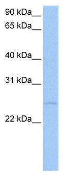 Western blot - RRP7A antibody - N-terminal (ab105545)