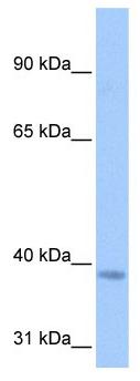 Western blot - NSUN3 antibody (ab105546)