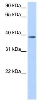 Western blot - NUDT13 antibody - N-terminal (ab105549)