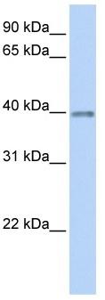 Western blot - Opticin antibody (ab105550)
