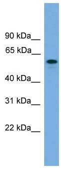 Western blot - KIAA1609 antibody (ab105554)