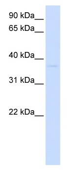 Western blot - GDAP1L1 antibody (ab105555)