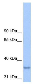 Western blot - LPPR2 antibody (ab105564)