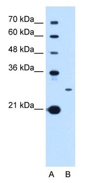 Western blot - TSPAN15 antibody (ab105567)