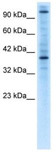 Western blot - ZNF624 antibody (ab105640)