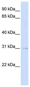 Western blot - PVRIG antibody (ab105641)
