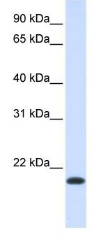 Western blot - NKAIN1 antibody (ab105646)