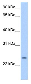 Western blot - PQLC1 antibody (ab105650)