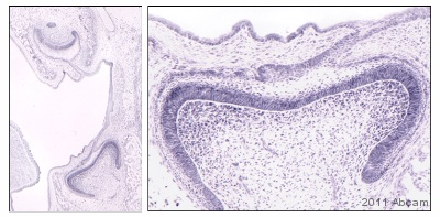 Immunohistochemistry (Formalin/PFA-fixed paraffin-embedded sections) - Anti-SP6 antibody (ab105652)