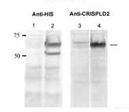 Western blot-Anti-CRISPLD2 antibody(ab105656)