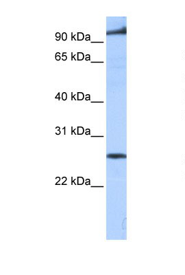 Western blot - PPAPDC1B antibody (ab105660)