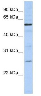 Western blot - ZGPAT antibody (ab105662)