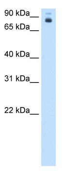 Western blot - HOXB2 antibody (ab105672)