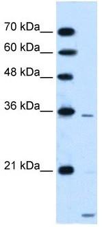 Western blot - SLC25A39 antibody (ab105683)