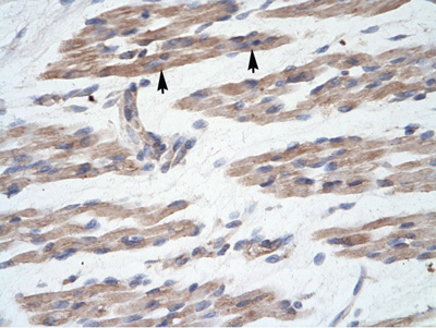 Immunohistochemistry (Formalin/PFA-fixed paraffin-embedded sections) - MANSC1 antibody (ab105686)