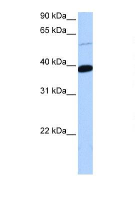 Western blot - ZNF562 antibody (ab105687)