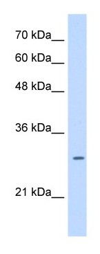 Western blot - LRRC59 antibody (ab105696)