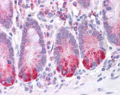 Immunohistochemistry (Formalin/PFA-fixed paraffin-embedded sections) - Anti-LRRC59 antibody (ab105696)