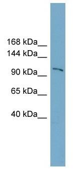 Western blot - FTSJD1 antibody (ab105698)