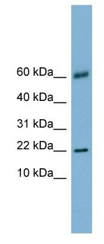 Western blot - LGALS14 antibody (ab105705)