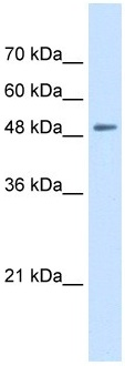 Western blot - SLC43A2 antibody (ab105717)