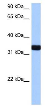 Western blot - GIMAP1 antibody (ab105721)