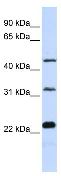 Western blot - FAM153B antibody (ab105747)